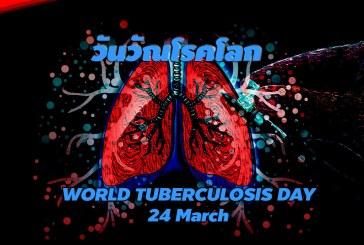 24 มีนาคม วันวัณโรคโลก